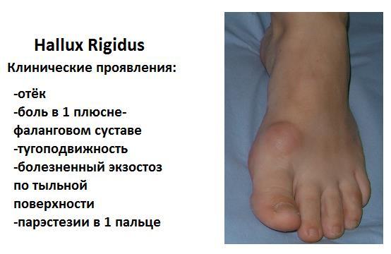 Артроз первого плюснефалангового сустава проявляется коленный сустав питание