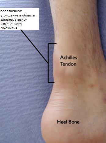 Тендинит Ахиллова сухожилия | Фото до и после, операция, отзывы ...