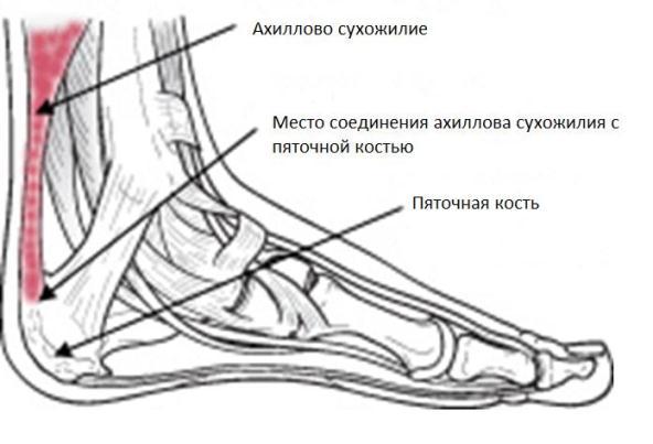 Повреждение сухожилий - Тендинит Ахиллова сухожилия Фото до и после, операция, отзывы, лечение, реабилитация и восстановление