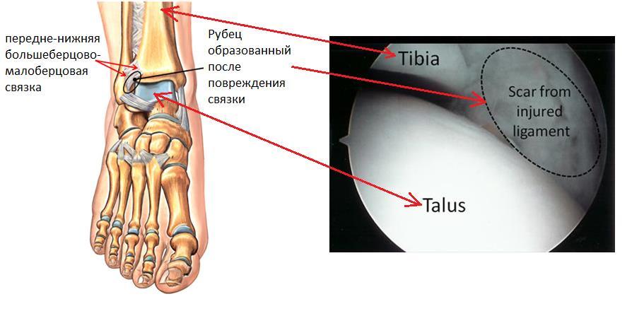 ушиб косточки пяточный сустав