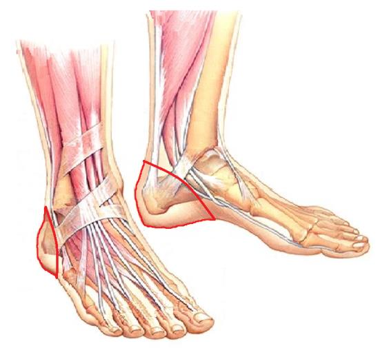 Болит нога после операции на венах