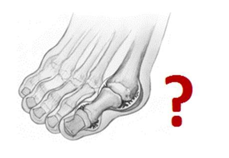 Симптомы косточки на большом пальце ноги