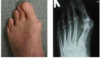 Косточка на большом пальце ноги лечение операция по удалению