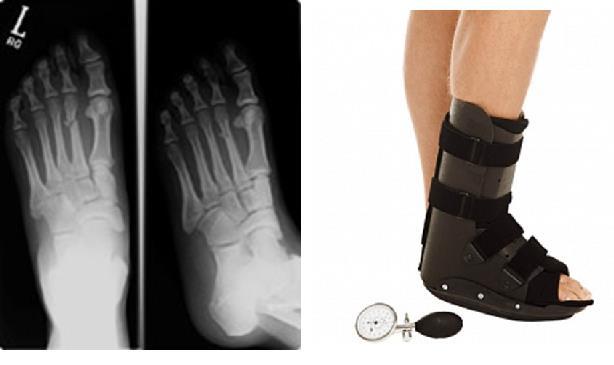 Перелом плюсневой кости | Фото до и после, операция, отзывы ...