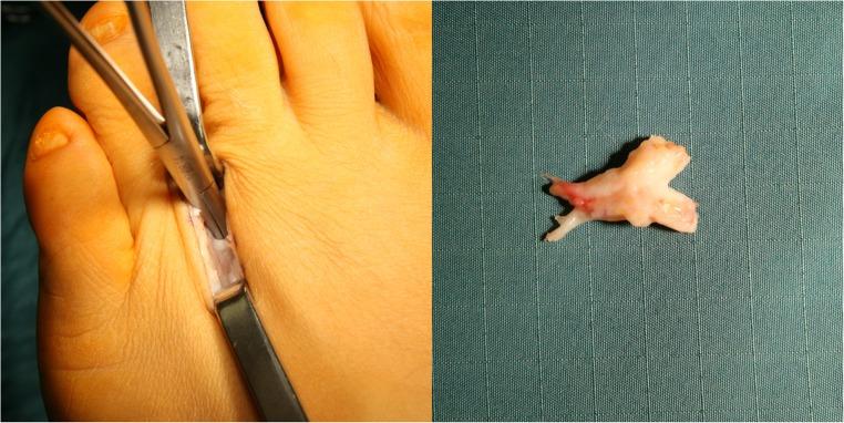 Артрозо-артрит плюсне-фаланговых суставов стопы