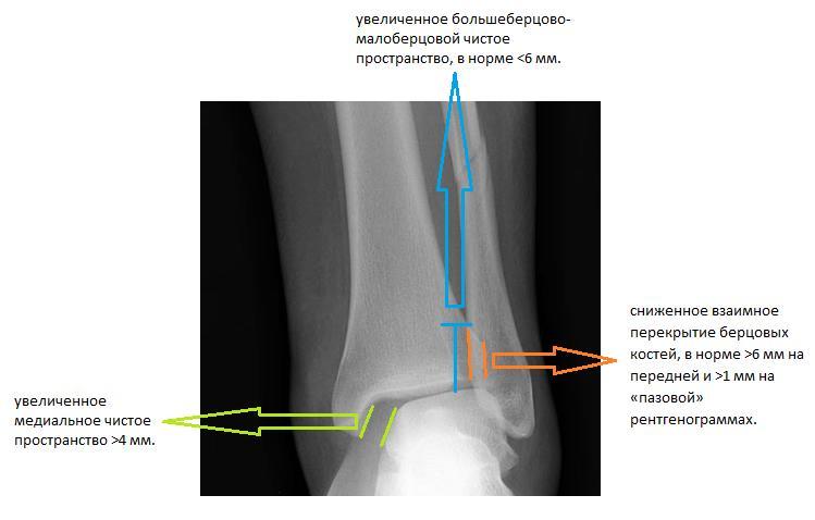 Закрытый перелом ладышек правого г-стопного сустава разрыв гимнастика при артрозе тазобедренных суставов