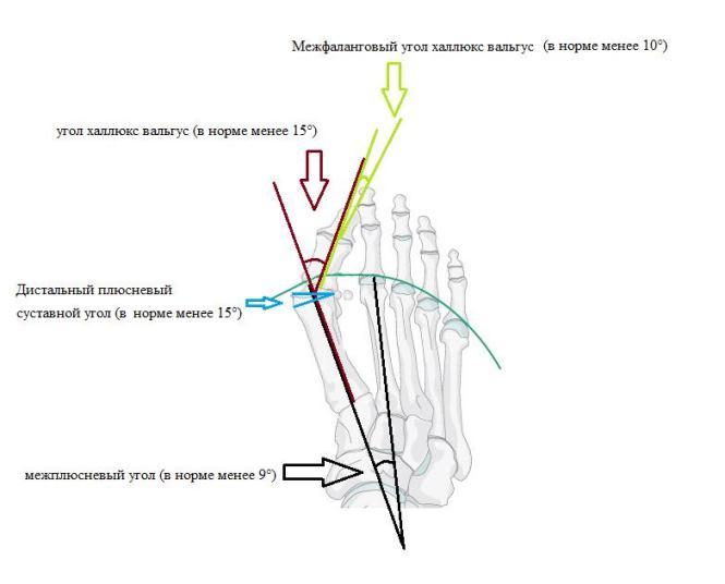Операция вальгусной деформации первого пальца стопы отзывы реабилитация