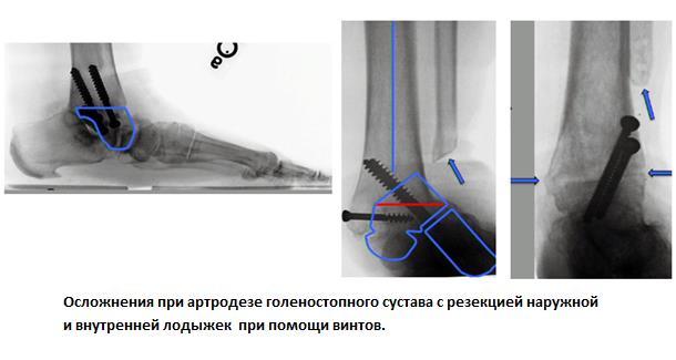 Изображение - Артродез голеностопного сустава 1