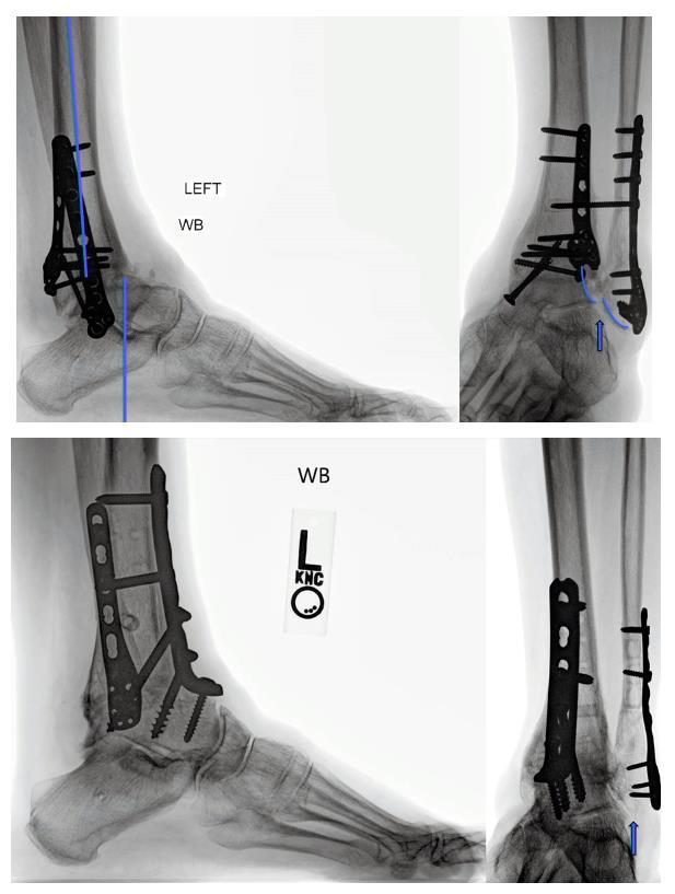 Изображение - Артродез голеностопного сустава 11