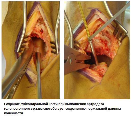 Изображение - Артродез голеностопного сустава 2