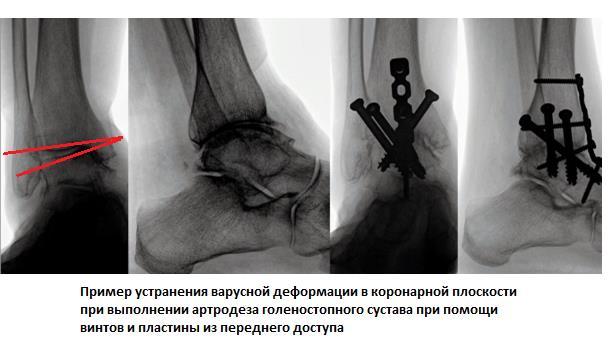 Изображение - Артродез голеностопного сустава 5