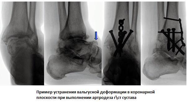 Изображение - Артродез голеностопного сустава 6