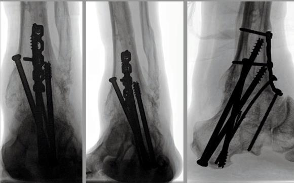 Изображение - Артродез голеностопного сустава 8