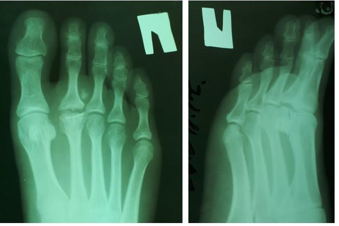 Физиотерапия после операции болезни келлера 2