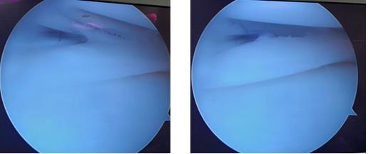 продольный разрыв заднего рога внутреннего мениска