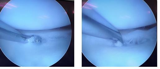 Повреждение медиального мениска коленного сустава операция thumbnail