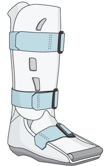 Перелом ладьевидной кости ноги