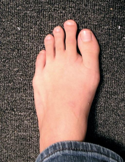 Операции артроза на косточке ноги thumbnail